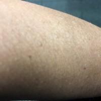 Attenti al sole. Attenti al melanoma.