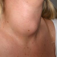 Quando la tiroide non funziona