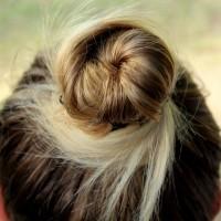 Caduta dei capelli: sempre meglio un consulto con un dermatologo